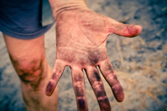 dirty hand